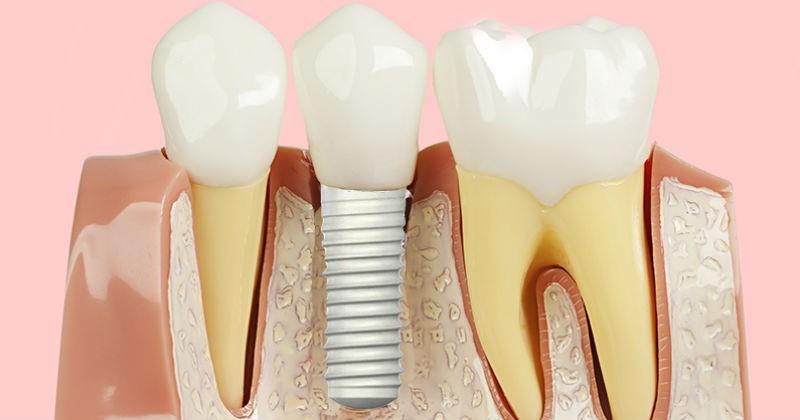 implantes dentários londrina