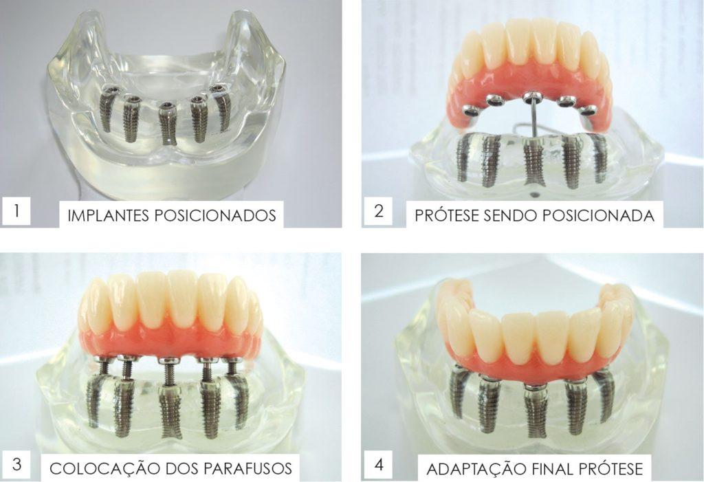 implantes dentarios londrina